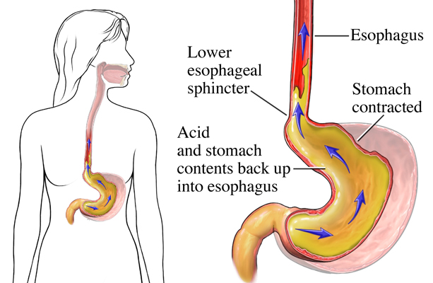 medical-illustration-stomach